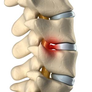 腰椎間盤突出
