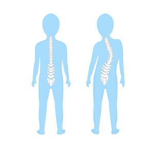 脊椎側彎,脊柱側彎